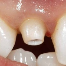 What is a Custom Implant Abutment?